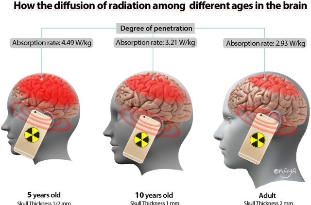 Absorption of mobile radiation in human brain by age